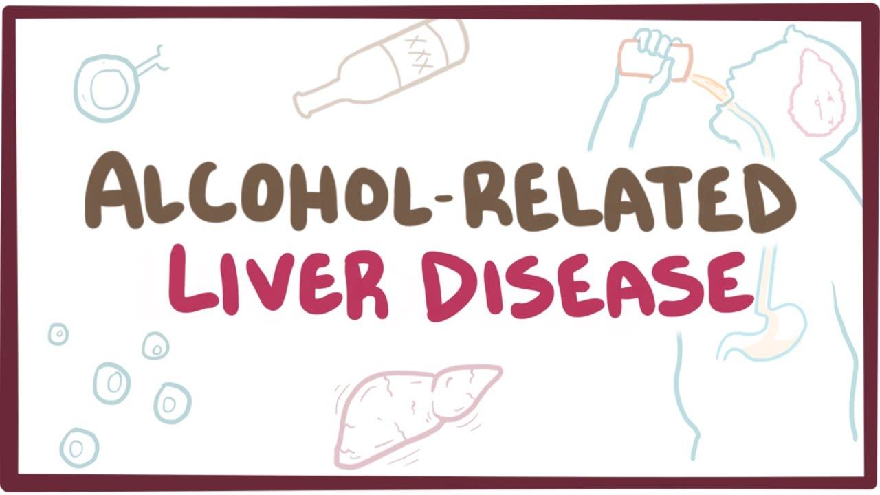 ALCOHOLIC LIVER DISEASE – BASIC FACTS Image